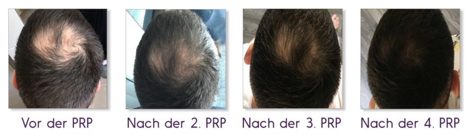 PRP Behandlung
