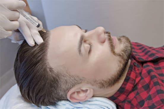 PRP Behandlung während der Haartransplantation
